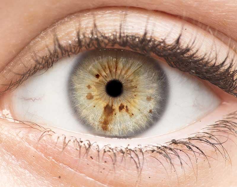La macula de l'œil contient des xanthophylles.