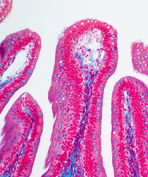 Villosités intestinales santé digestive nutrixeal info