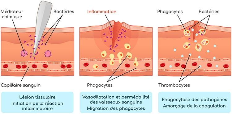 Réaction inflammatoire Nutrixeal Info